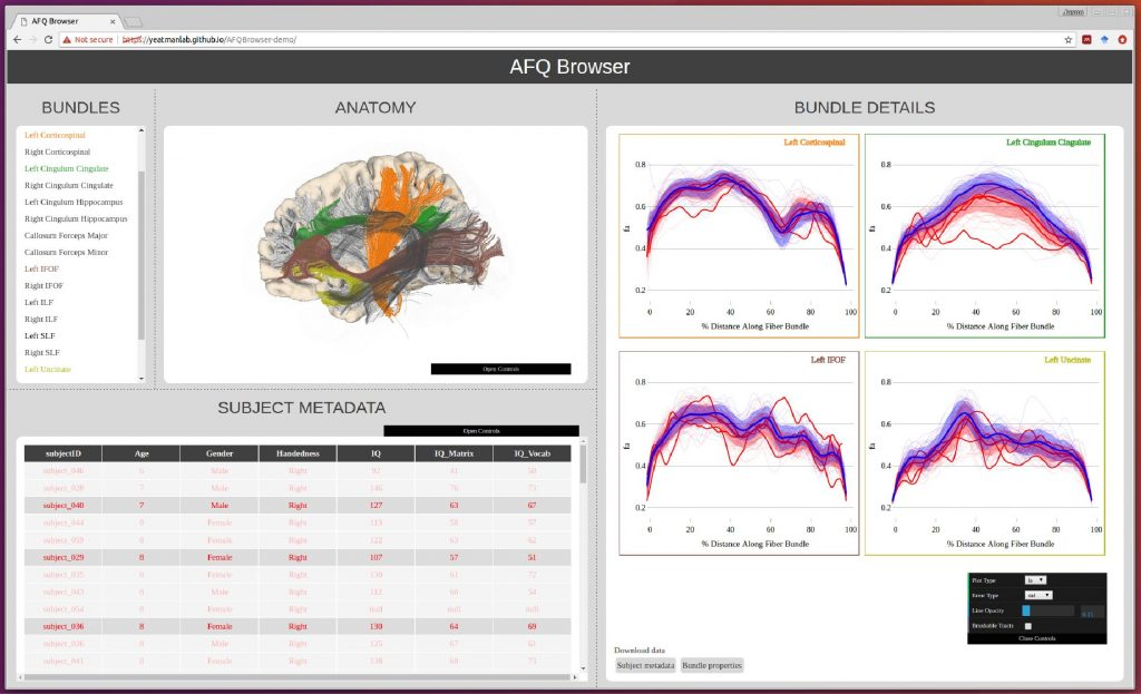 AFQ-Browser manuscript preprint - Brain Development & Education Lab