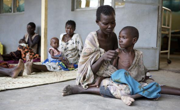 malnutrition2
