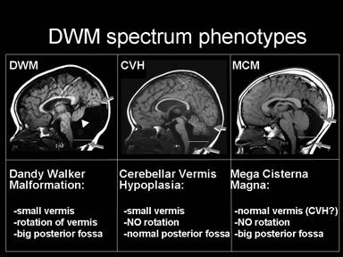 human brain research   millen lab   division of genetics, Skeleton