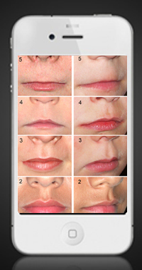 Lip-Philtrum Guides