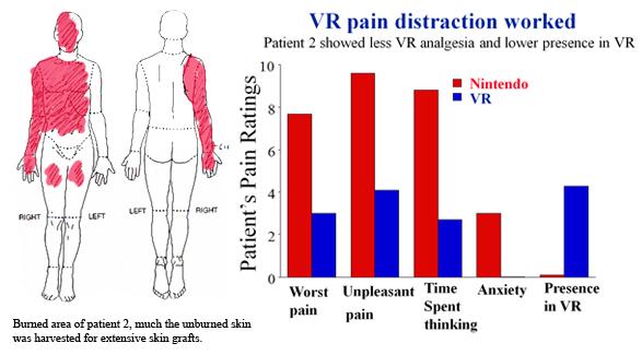 bac8b2ba8c7c Virtual Reality Pain Reduction – Human Photonics Laboratory