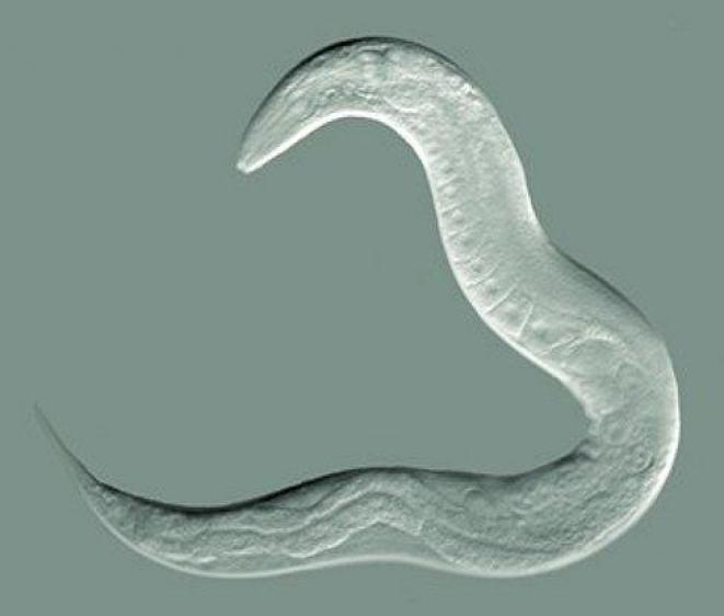 The Tiny Worm Driving UW Alzheimer's Research - Memory and
